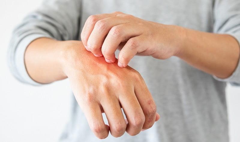 Gyógyszerek s pikkelysmr kezelsek