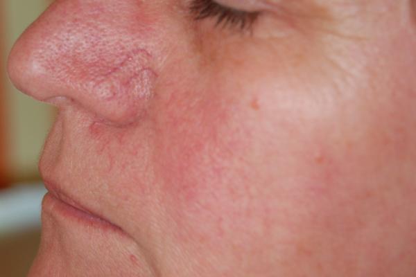 pigmentált vörös folt az arcon