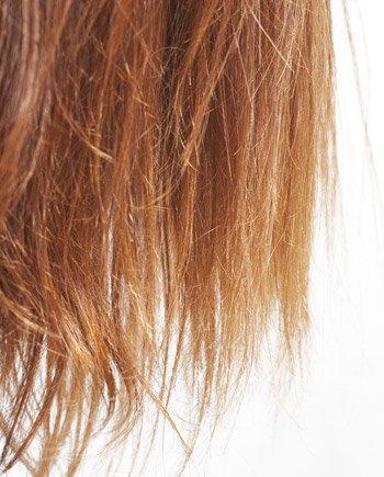 hogyan kell kezelni a haj pikkelysmr)
