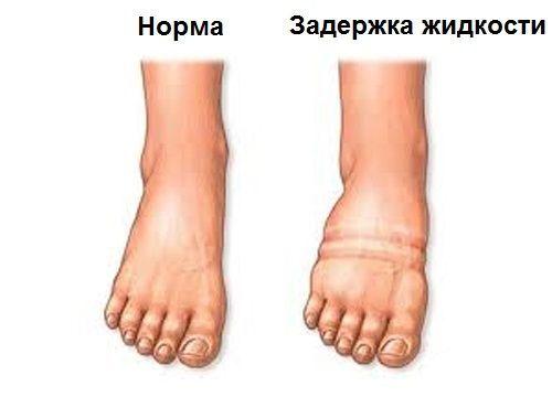 a lábakat vörös foltok viszik és megduzzadnak láb psoriasis kezelése