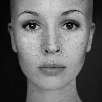 vörös száraz foltokkal borított arc)