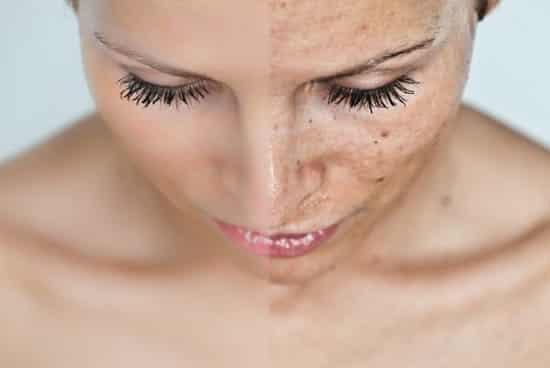 fehérítenek vörös foltokat az arcon