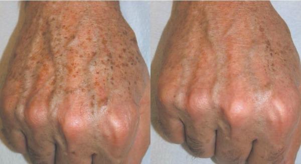 a foltok vörösek a lábakon, majd kékekké válnak pikkelysömör kezelése súlyosbodás során