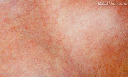 lehúzva a bőrt a lábakról vörös foltok)