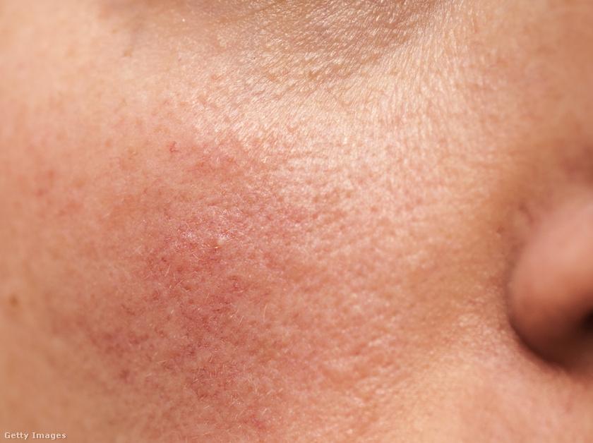 mit jelenthetnek az arcbőr piros foltjai)