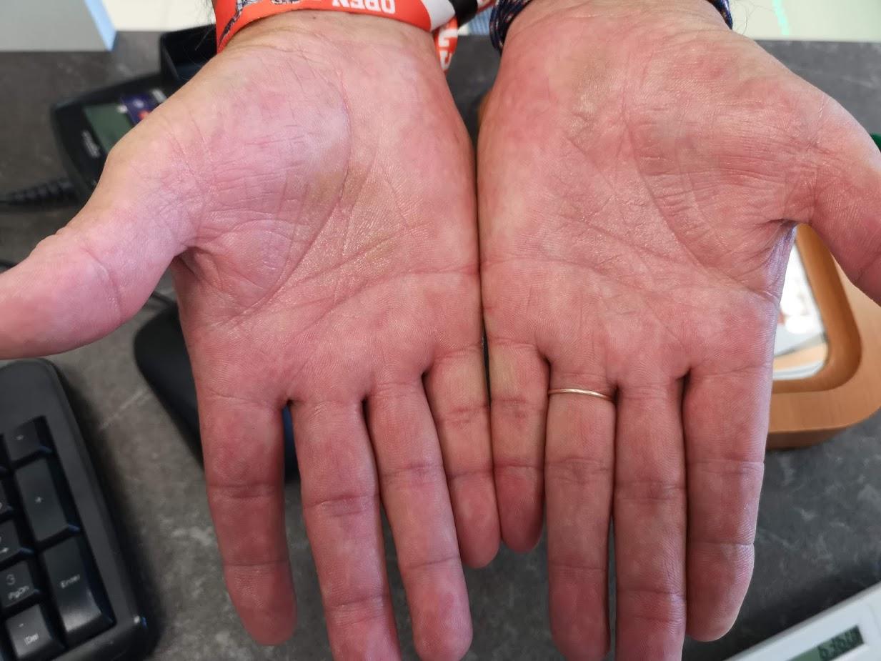 piros érdes foltok a kezek fényképen