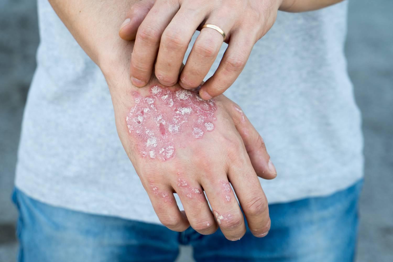 Pikkelysömör, psoriasis - Dermatica Bőrgyógyászat és Kozmetika