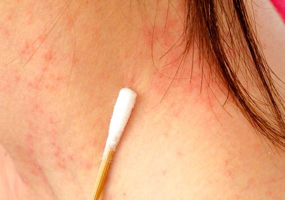 vörös pikkelyes folt a bőrön vörös foltok az arcon az antibiotikumoktól