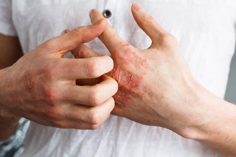 Német psoriasis orvosság)
