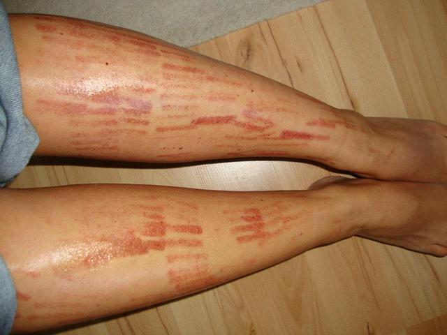 vörös foltok a lábakon szőrtelenítés után