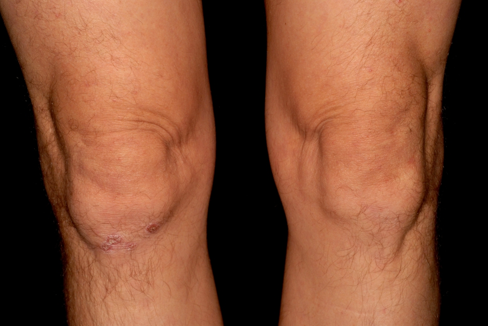 láb psoriasis kezelése)