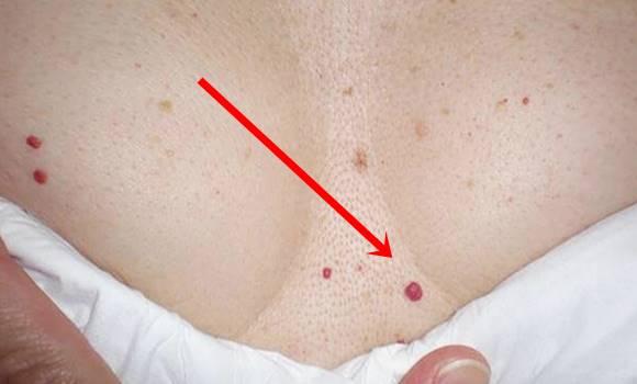 hogyan lehet eltávolítani a vörös foltot a bőrről