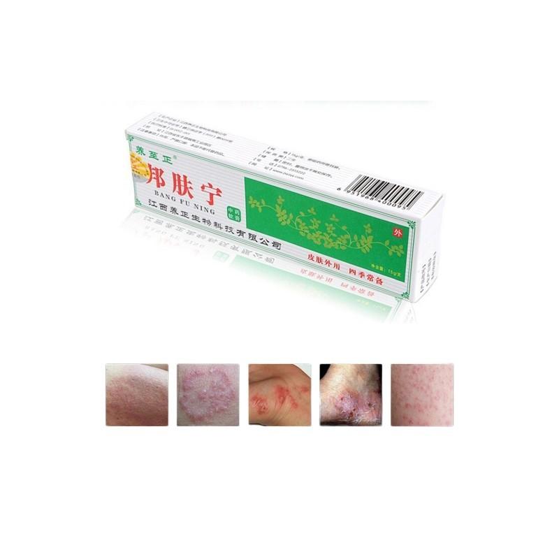 18g kínai növényi pikkelysömör dermatitisz ekcéma krém kenőcs