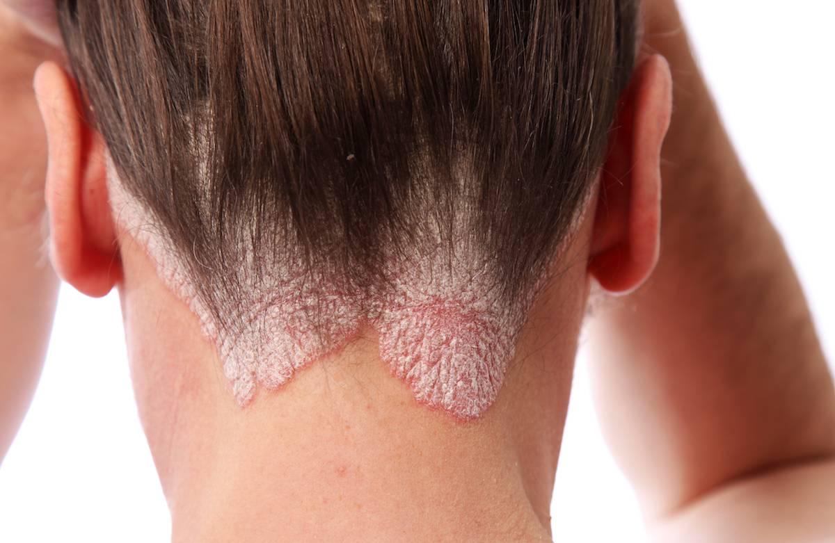 fejbőr psoriasis kezelési rend)
