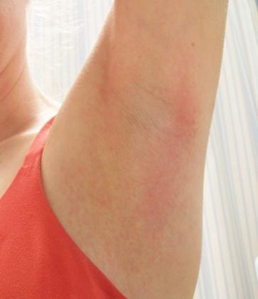 vörös viszkető nagy foltok a testen vörös forró pont a lábán