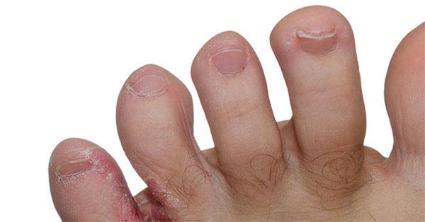 vörös foltok hólyagokkal a lábujjakon