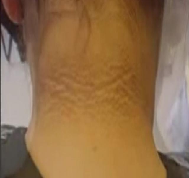 pikkelysömör kezelése stepanova szerint vörös foltok a vállon és a karon