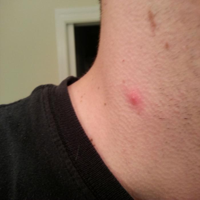 pelyhes vörös folt a nyakon)