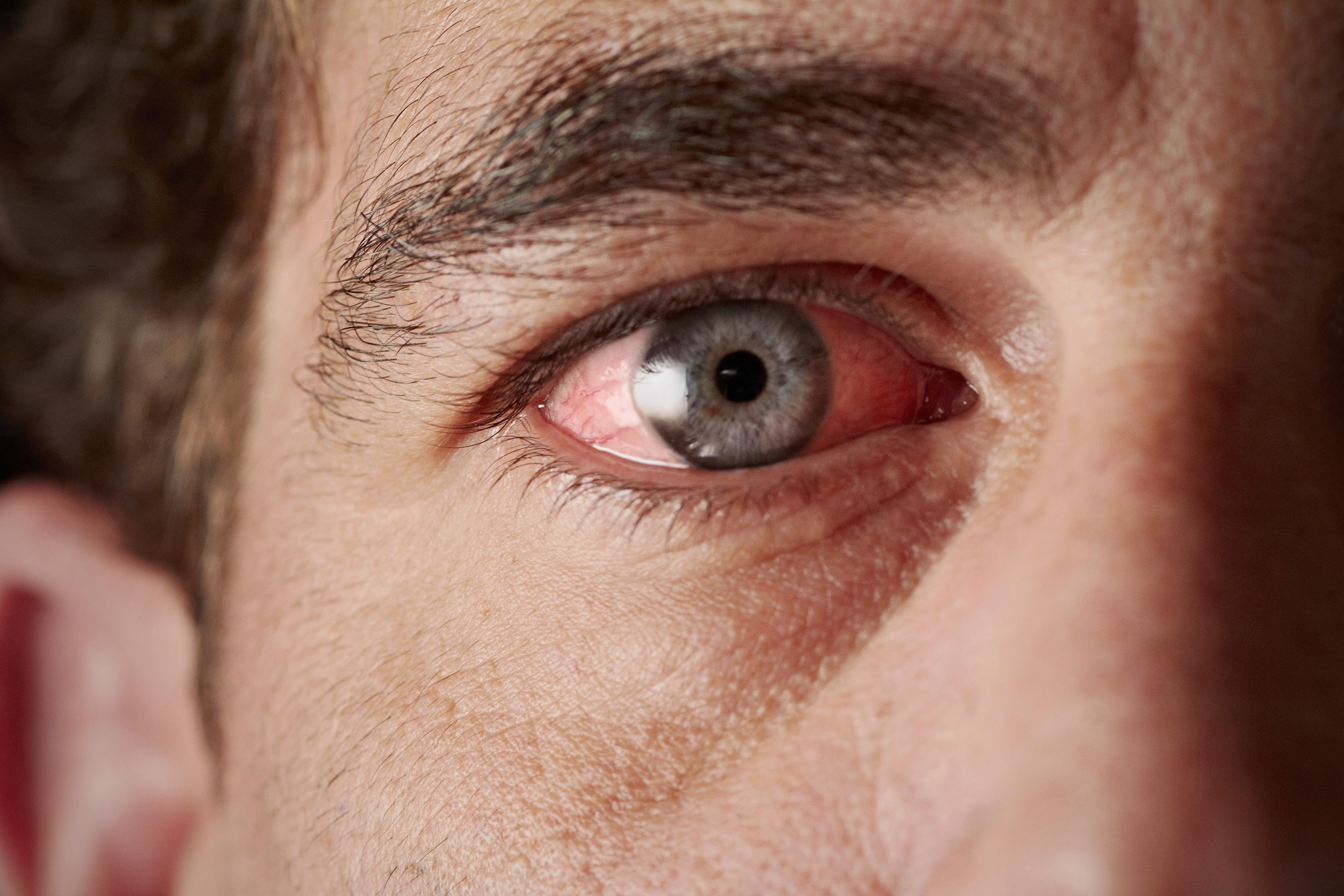 vörös folt a szem alatt és pelyhek)