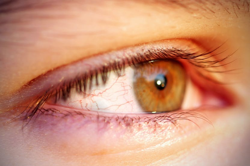 hogyan lehet eltávolítani a szem vörös foltjait