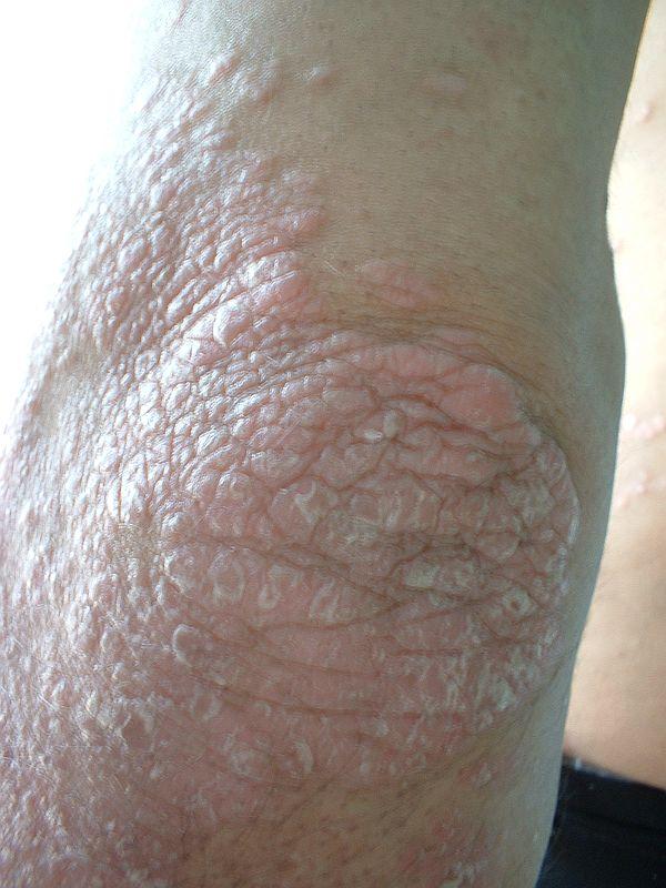 A pikkelysömör megjelenésének első jelei a könyökön és az otthoni kezelés módjai - Tünetek