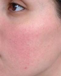 vörös durva folt az arc bőrén