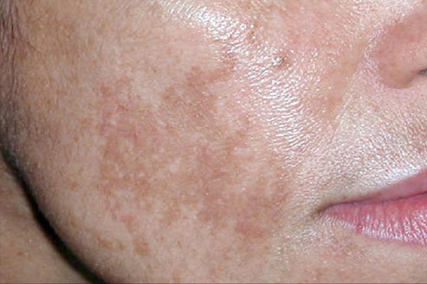 maszk vörös foltok ellen az arcon