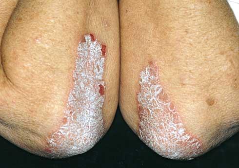 pikkelysömör kezelésére a lábon