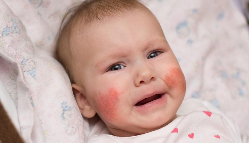 vörös foltok pikkelyezéssel az arcon
