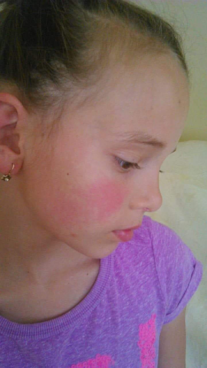 kerek piros foltok az arc bőrén)