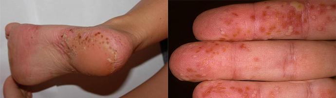 pikkelysömör kezelése a tenyéren népi gyógymódokkal a bőr ég és vörös foltok borítják