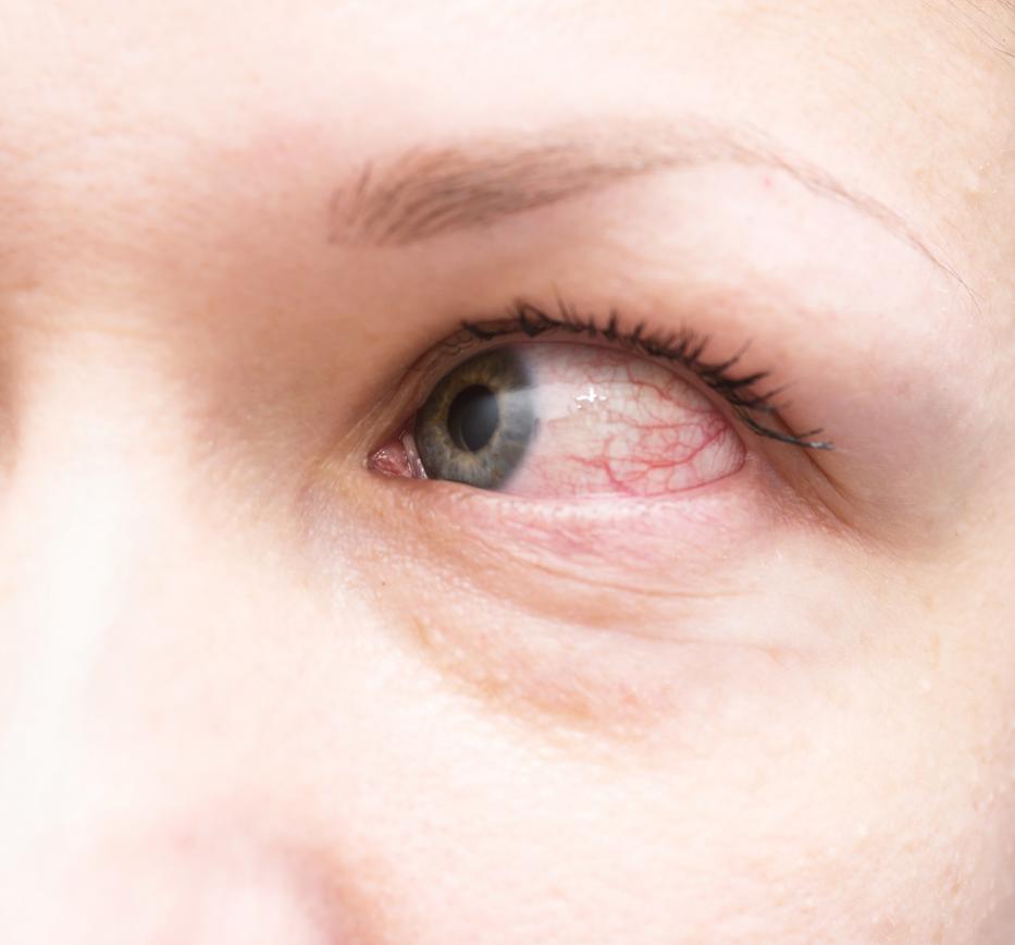 Piros foltok a szemhéjon (pelyhes)
