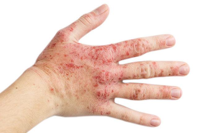 vörös foltok az ok és az arc kezén)