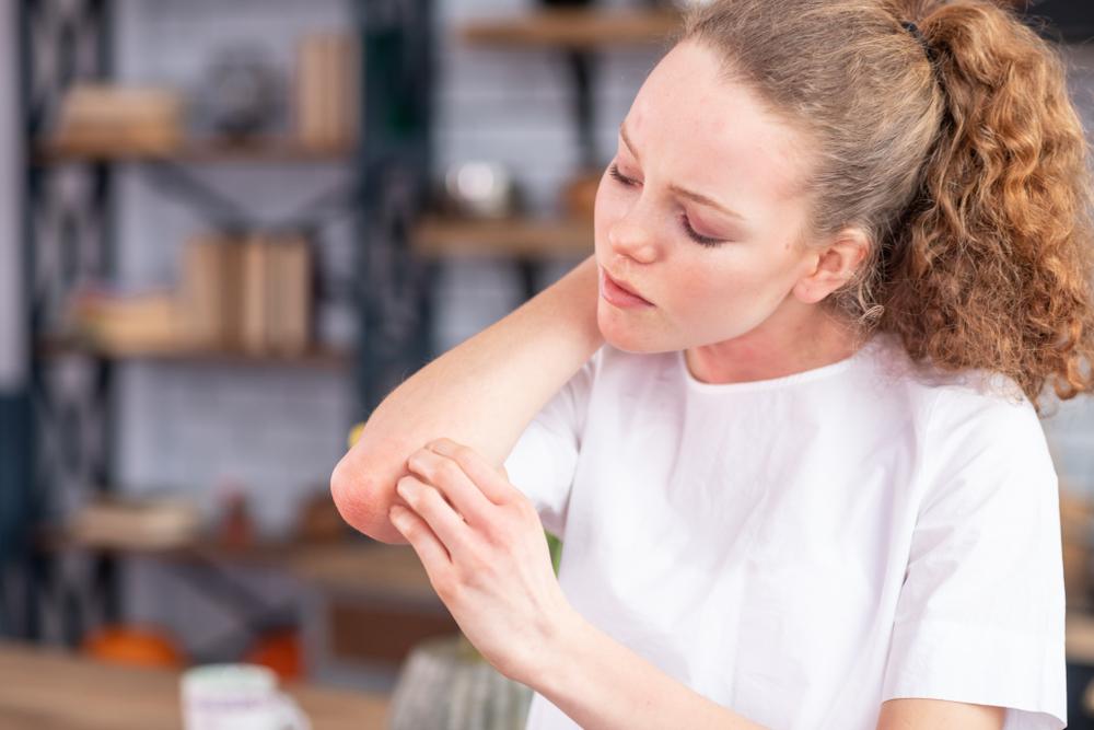 hogyan lehet a könyök pikkelysömör gyógyítani