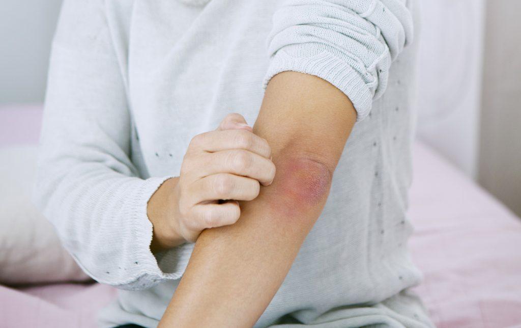 a bőr megtisztítása a vörös foltoktól
