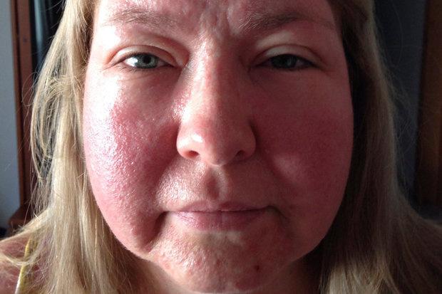 hogyan kell festeni az arc piros foltjain viszket gygyszer pikkelysömörhöz