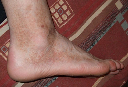 minden lábát vörös foltok borították)