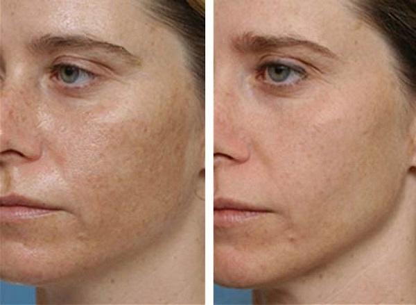 hogyan lehet gyorsan eltávolítani a vörös foltokat az arcról)
