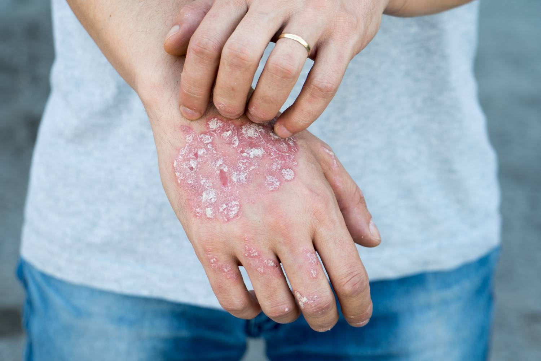 hogyan lehet megszabadulni az arcbőr piros foltjaitól aromaterápiás pikkelysömör kezelése