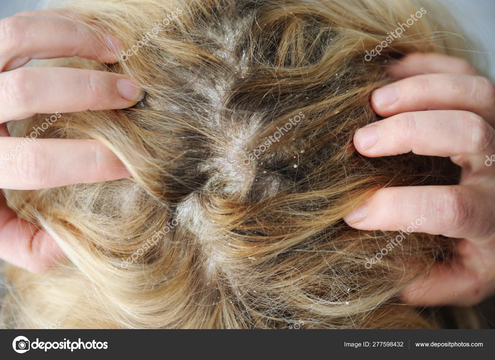 a seborrhea haj pikkelysmr kezelsre)