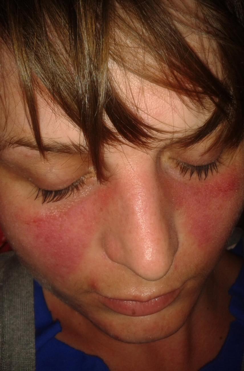 éles vörös foltok jelentek meg az arcon)