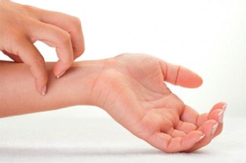 kézbőr psoriasis kezelése pikkelysömör kezelés tudósok