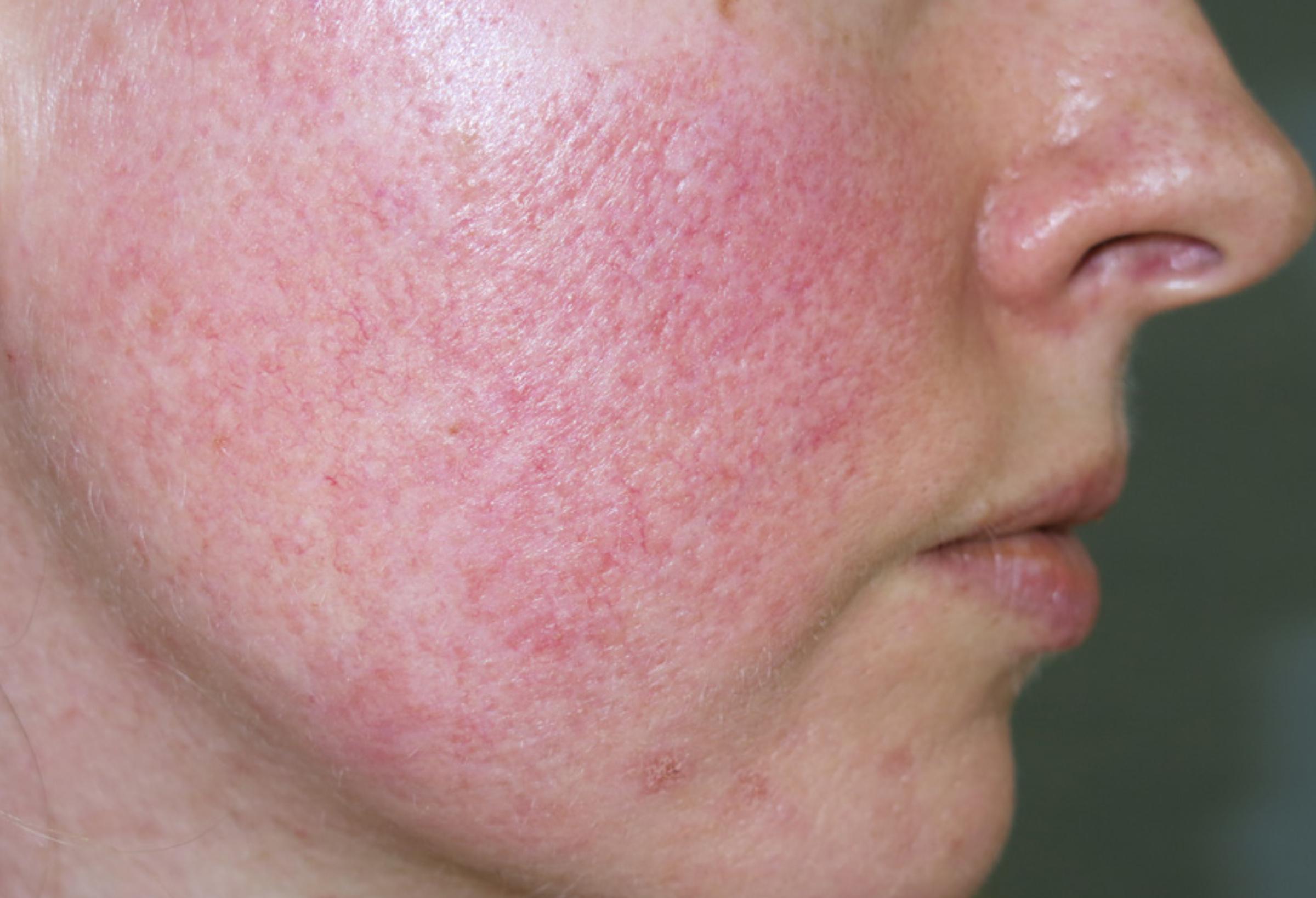 hogyan lehet megszabadulni az arcbőr piros foltjaitól)