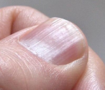 hipopigmentált foltok a vitiligóból és a pikkelysömörből hogyan kell kezelni