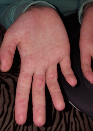 vörös foltok az ujjakon és viszketés)