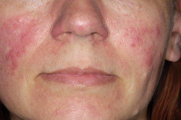 kiütések vörös foltok formájában az arcon