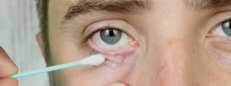 hogyan lehet gyógyítani a pikkelysömör a szem vörös folt a hátán viszket, hogyan kell kezelni