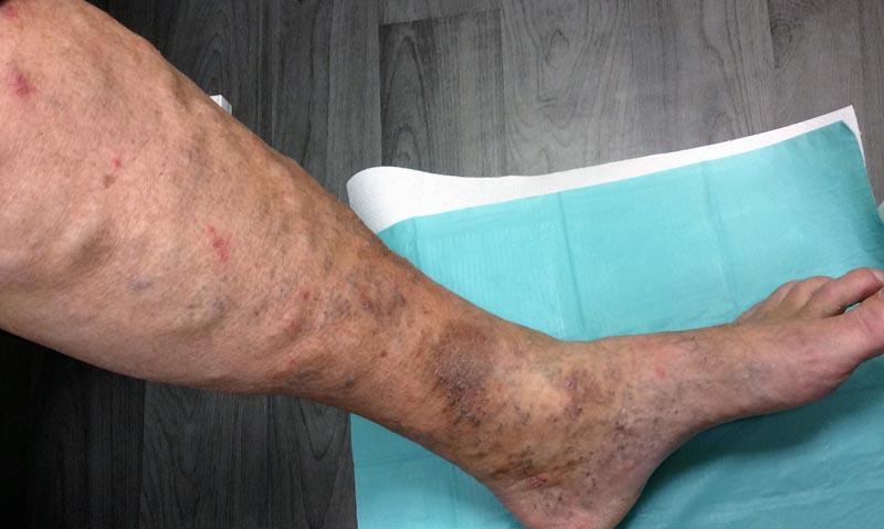 vörös foltok a lábakon lévő ereken)