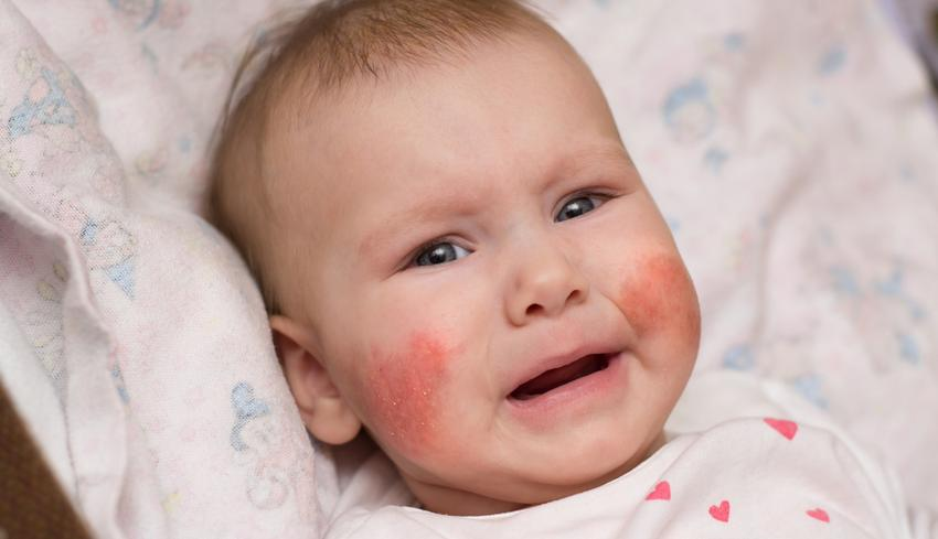 a homlok foltja vörös és viszket