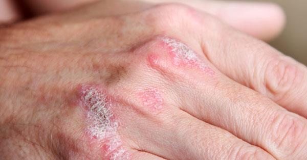 a pikkelysömör betegségének jelei